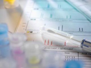HIV感染からAIDS(エイズ)発症までの経過と治療について