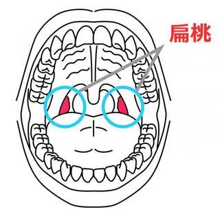 急性扁桃炎の症状と原因と対処法:赤ちゃん・子どもの喉の腫れに注意しよう