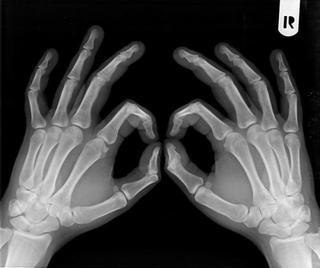 あなたは骨太?骨細?手首回りの測定で簡単に判断できます