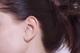 めまいや吐き気も引き起こす「突発性難聴」は初期症状を見逃さないで!早期の治療が回復のカギ。治療と対処法は?