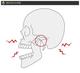 アゴ(顎)が外れたら応急処置・対処法はどうしたらいいの?アゴが外れる顎関節脱臼の原因と症状、顎関節症とは?
