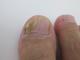 爪水虫の原因と症状|治療薬と治療方法も解説