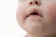 鵞口瘡(がこうそう):赤ちゃんに多い口腔カンジダ症の症状と原因・注意点