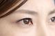 角膜炎は目の感染症|原因・症状・予防方法まで解説