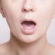 ストレスや寝不足で口内炎はできる!対処法をわかりやすく解説