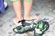 子どものO脚・X脚:症状や原因・治療法について