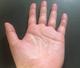 手のひらの多汗症|詳しい症状と何科を受診すべきかを解説