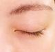 目の周りの湿疹に使えるおすすめの市販薬