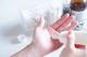 手の湿疹の予防には保湿が有効!おすすめのハンドクリームを紹介