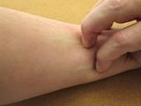 湿疹・皮膚炎の原因と対策|自分でできるケア方法は?