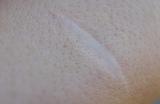 虫刺され・乾燥肌でできるかきむしり跡|治せる市販薬はある?
