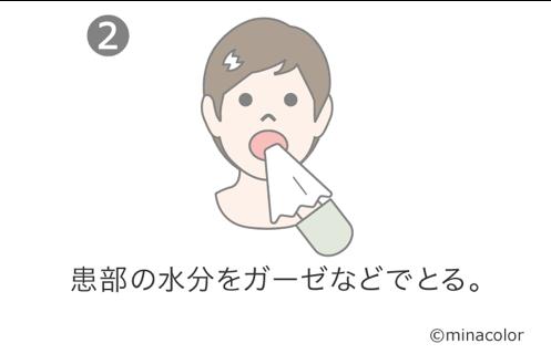 貼り薬の使い方2