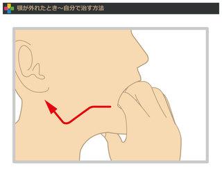 あくび 顎 外れる