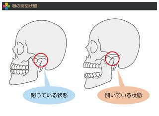 外れる あくび 顎