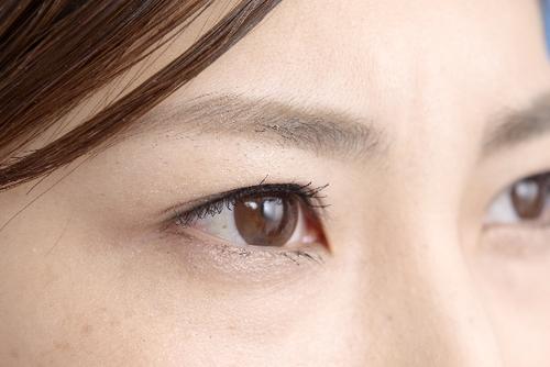 角膜炎におすすめの市販目薬6選!角膜の傷を治すには?