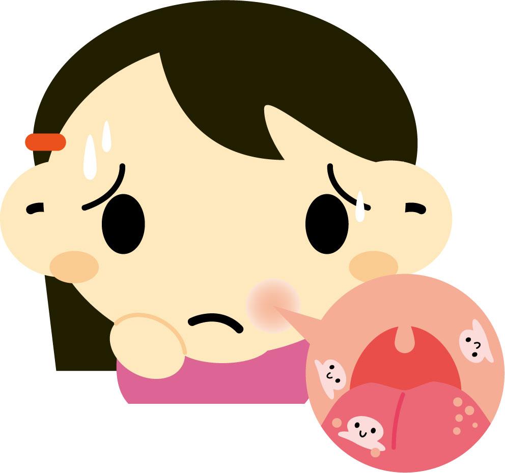 白い痛い口内炎!アフタ性口内炎の原因と対処法