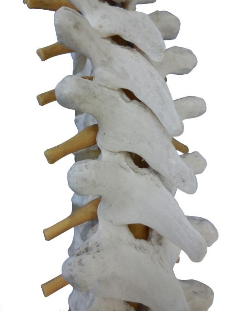 脊椎側弯症の原因や症状を解説!大人も側弯症になる?