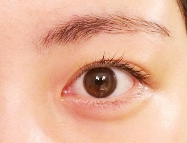 ドライアイの原因とは?マイボーム腺機能不全症と目のシワ・結膜弛緩症について知ろう